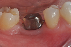 mark waring dds implant with cad cam crown DSC 1073